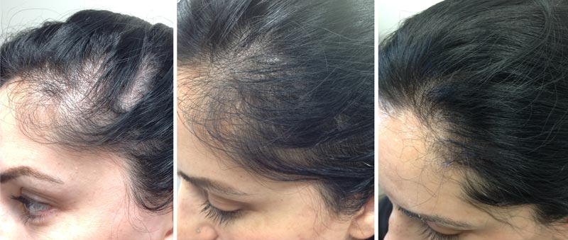 Hair Loss Treatment with PRP Refined Dermatology, Los Gatos + San Jose