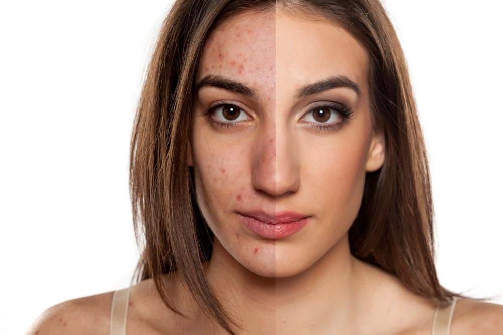 Sun Damage: Is It Too Late? | Refined Dermatology, Los Gatos + San Jose