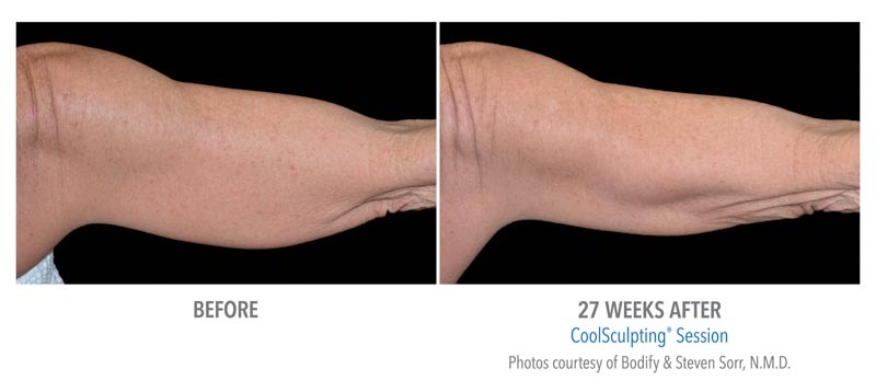 CoolSculpting | RefinedMD, Los Gatos, CA