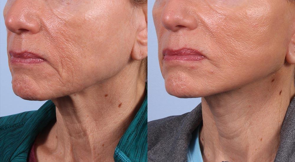 Facelift Patient 10 Photos | Dr. Sudeep Roy, RefinedMD