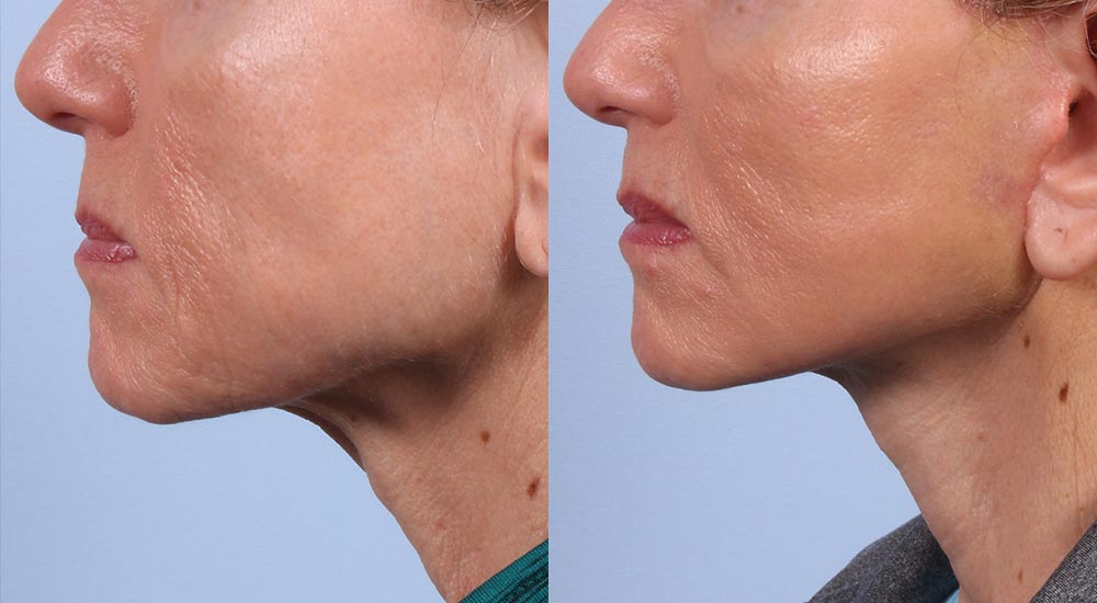 Facelift Patient 10 Photos | Dr. Sudeep Roy, RefinedMD