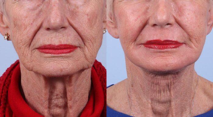 Facelift Patient 1 | Dr. Sudeep Roy | RefinedMD, Los Gatos, CA