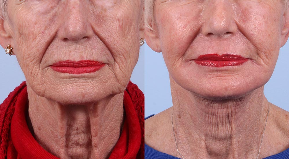Facelift Patient 1 | Dr. Sudeep Roy | Refined Dermatology, Los Gatos, CA