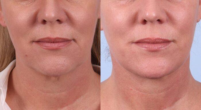 Facelift Patient 2 | Dr. Sudeep Roy | RefinedMD, Los Gatos, CA