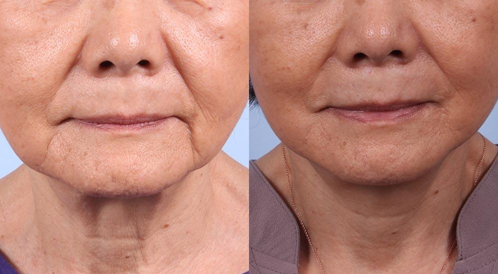 Facelift Patient 3 | Dr. Sudeep Roy | Refined Dermatology, Los Gatos, CA