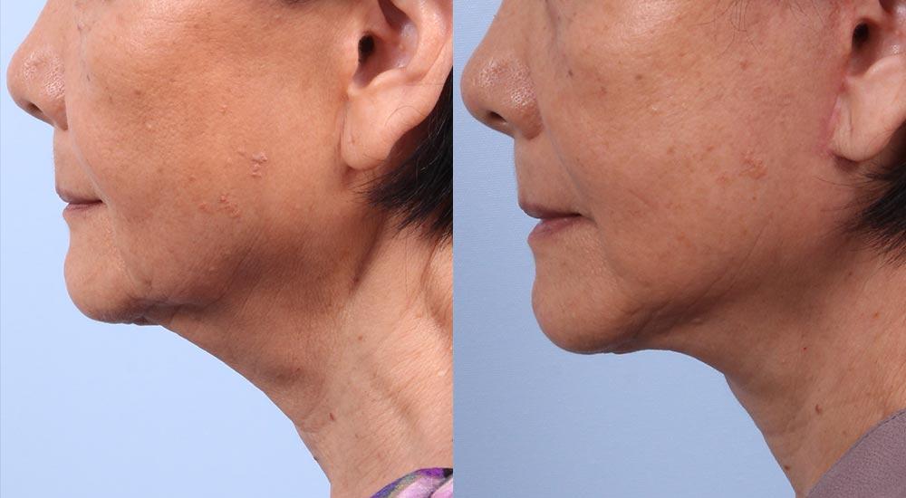 Facelift Patient 3 | Dr. Sudeep Roy | RefinedMD, Los Gatos, CA