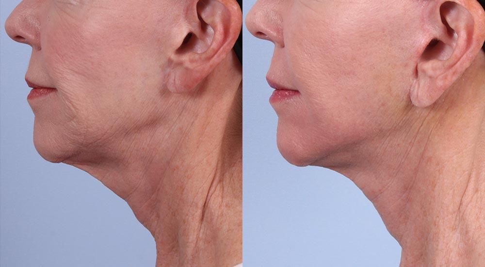 Facelift Patient 4 | Dr. Sudeep Roy | RefinedMD, Los Gatos, CA