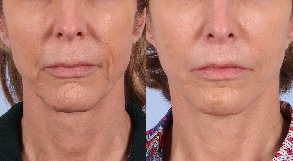 Facelift Patient 5   Dr. Sudeep Roy   RefinedMD, Los Gatos, CA