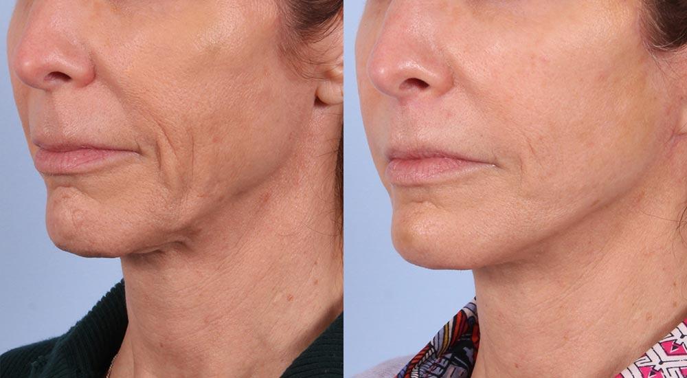 Facelift Patient 5 | Dr. Sudeep Roy | RefinedMD, Los Gatos, CA
