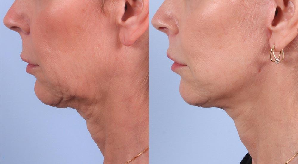 Facelift Patient 6 | Dr. Sudeep Roy | RefinedMD, Los Gatos, CA