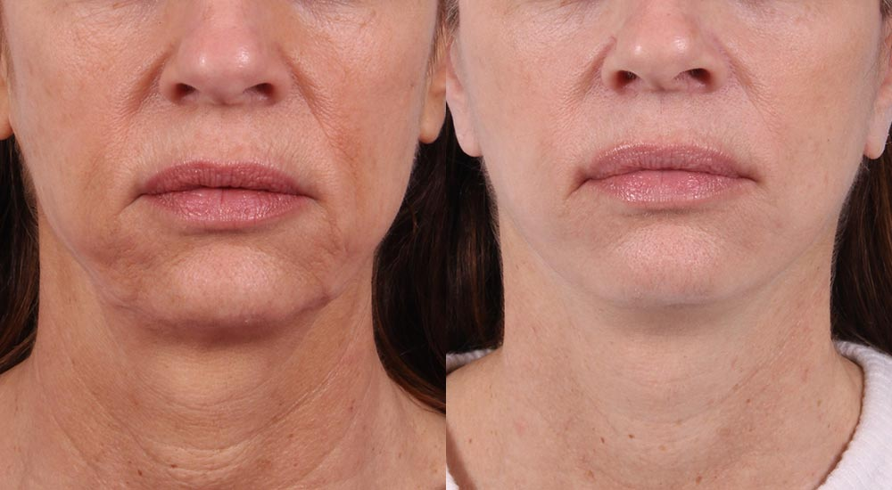 Facelift Patient 7 | Dr. Sudeep Roy | Refined Dermatology, Los Gatos, CA