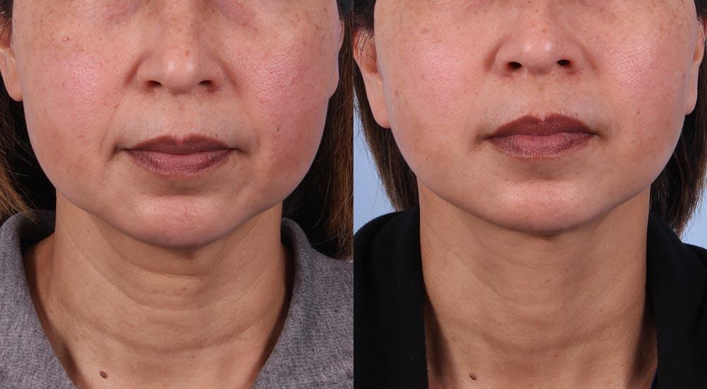 Facelift Patient 8 | Dr. Sudeep Roy | Refined Dermatology, Los Gatos, CA