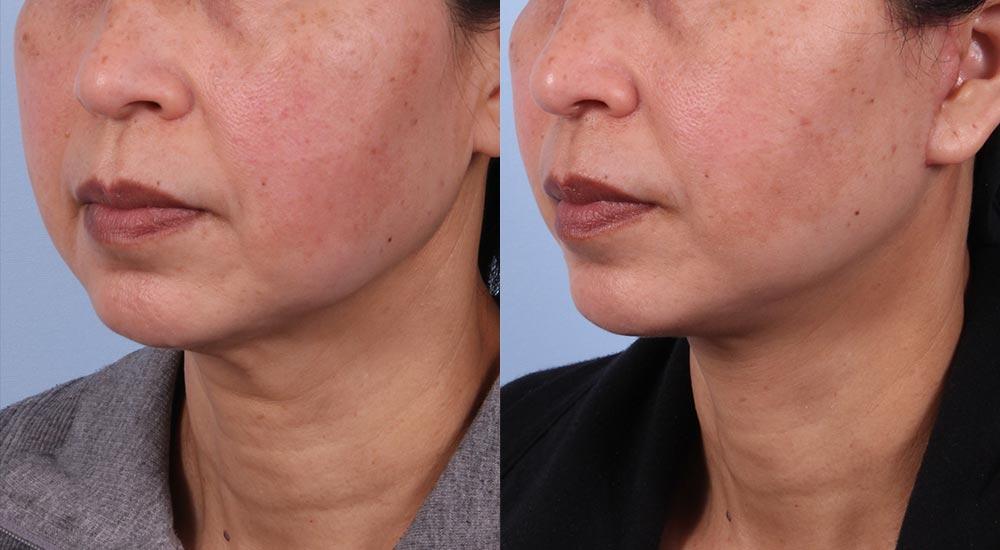 Facelift Patient 8 | Dr. Sudeep Roy | RefinedMD, Los Gatos, CA