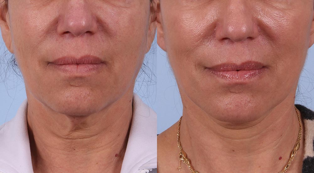 Facelift Patient 9 Photos | Dr. Sudeep Roy, RefinedMD