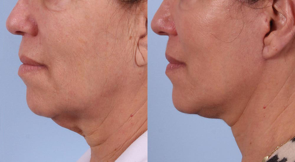 Facelift Patient 9 Photos | Dr. Sudeep Roy, RefinedMD