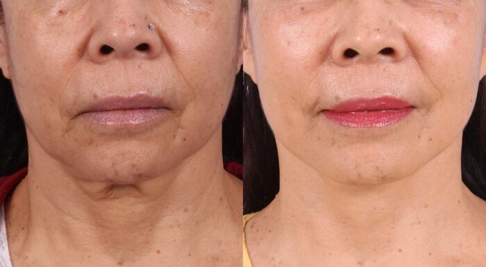 Facelift Patient 11 Photos | Dr. Sudeep Roy, RefinedMD