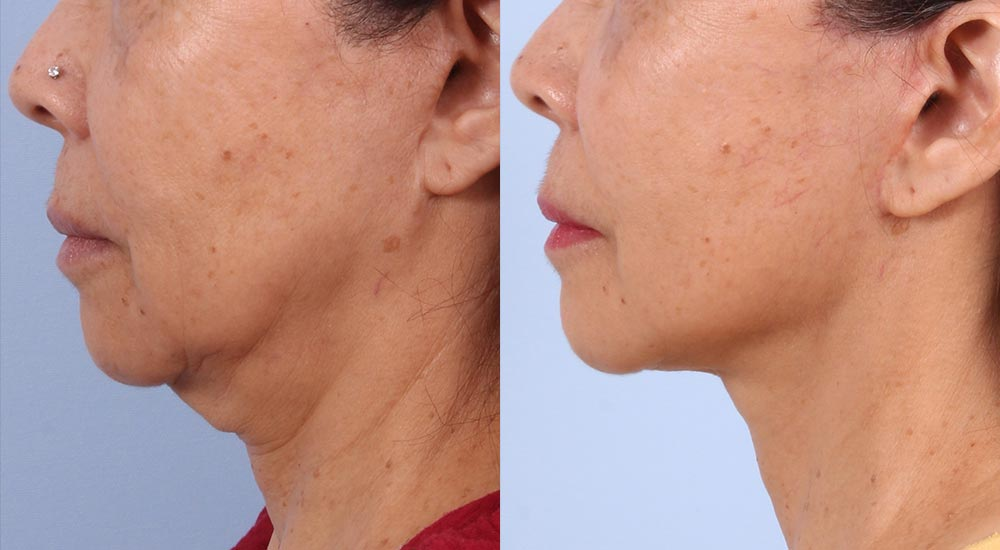Facelift Patient 11 Photos | Dr. Sudeep Roy, RefinedMD