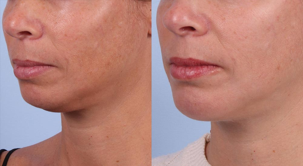Neck Lift Patient 1 Photos | Dr. Sudeep Roy, RefinedMD