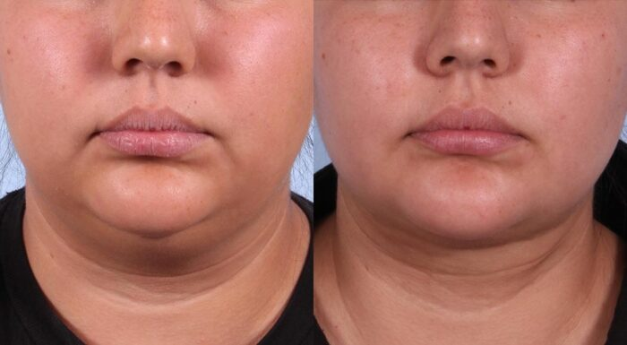Neck Lift Patient 2 Photos | Dr. Sudeep Roy, RefinedMD