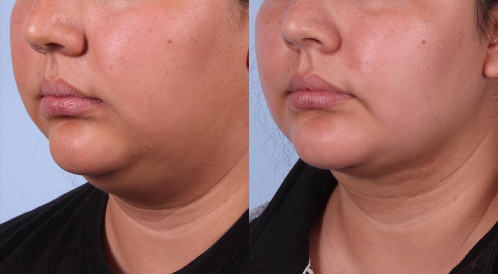 Neck Lift Patient 2 Photos | Dr. Sudeep Roy, RefinedMD