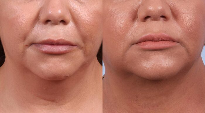 Neck Lift Patient 3 Photos | Dr. Sudeep Roy, RefinedMD