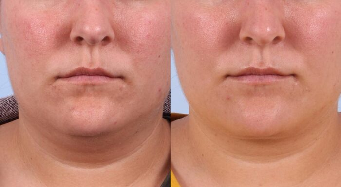 Neck Lift Patient 4 Photos | Dr. Sudeep Roy, RefinedMD