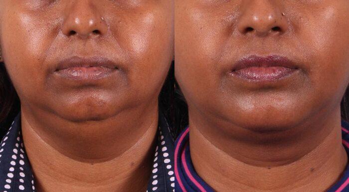 Neck Lift Patient 5 Photos | Dr. Sudeep Roy, RefinedMD