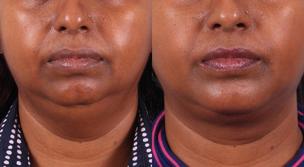 Neck Lift Patient 5 Photos | Dr. Sudeep Roy, Refined Dermatology