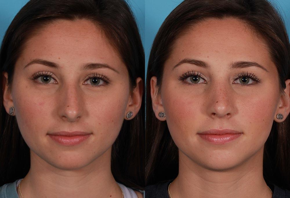 Rhinoplasty Patient 1 Photos | Dr. Sudeep Roy, Refined Dermatology