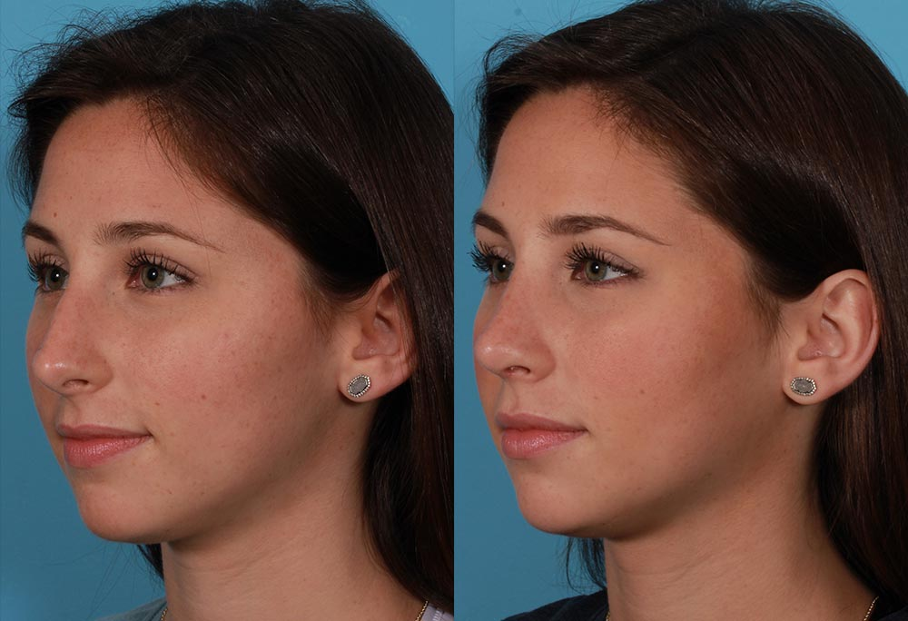 Rhinoplasty Patient 1 Photos | Dr. Sudeep Roy, RefinedMD