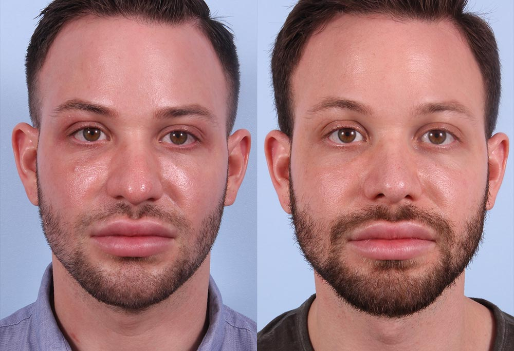 Rhinoplasty Patient 2 Photos | Dr. Sudeep Roy, RefinedMD
