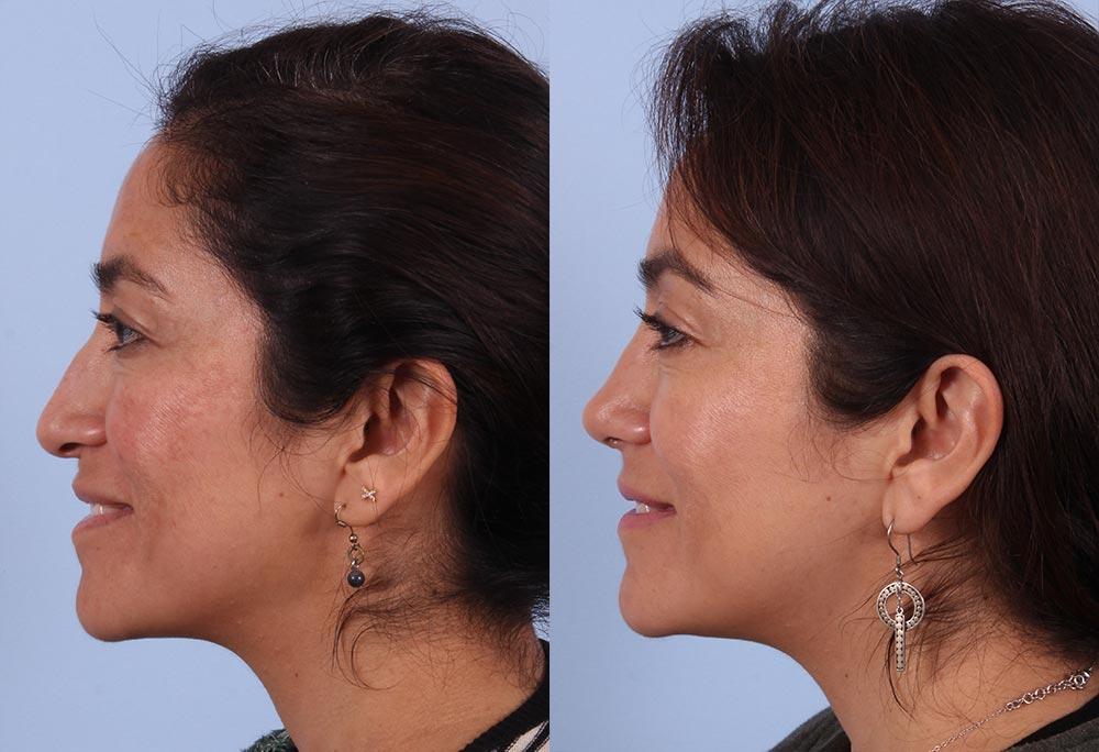 Rhinoplasty Patient 3 Photos | Dr. Sudeep Roy, RefinedMD