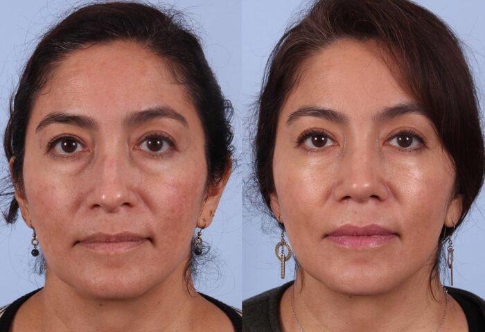 Rhinoplasty Patient 3 Photos | Dr. Sudeep Roy, Refined Dermatology