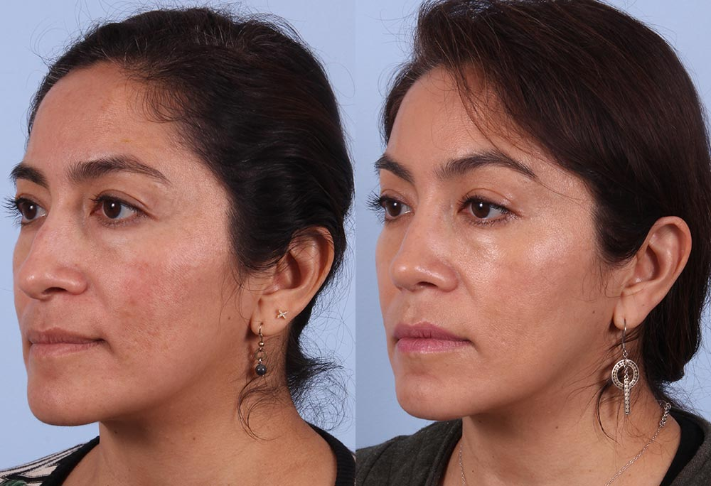 Rhinoplasty Patient 3 Photos | Dr. Sudeep Roy, RefinedMD
