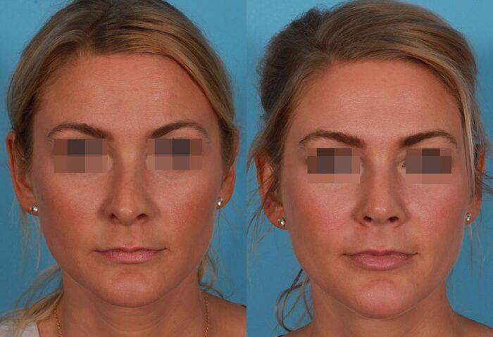 Rhinoplasty Patient 4 Photos | Dr. Sudeep Roy, Refined Dermatology