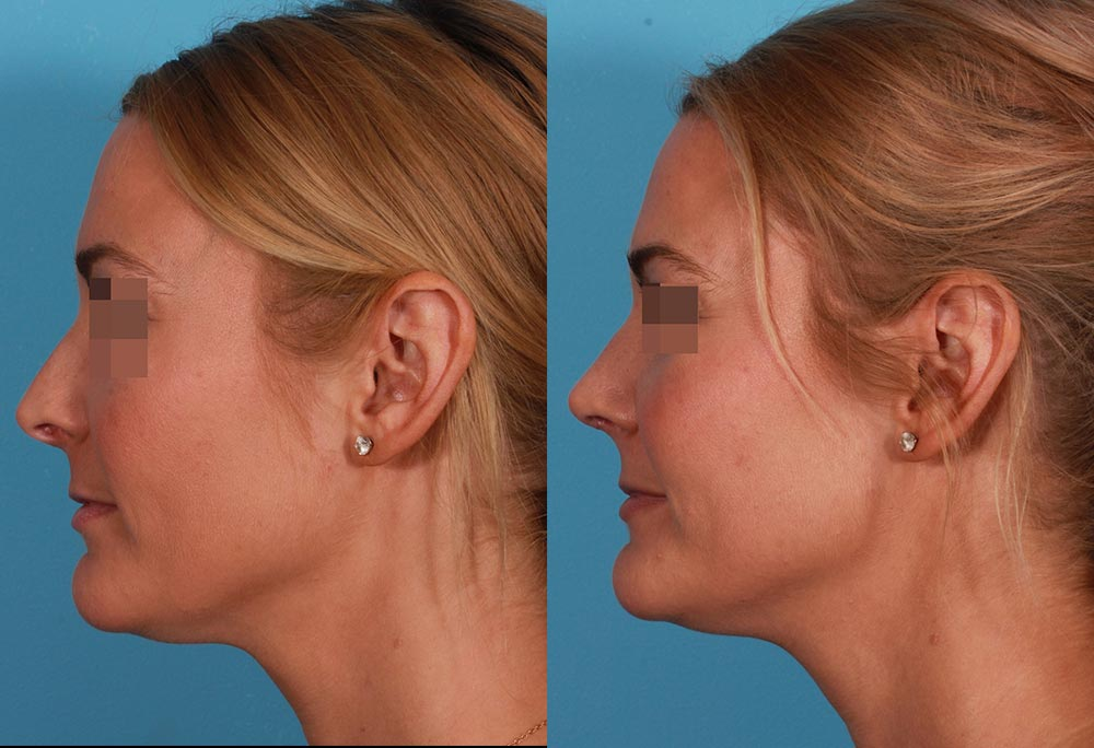Rhinoplasty Patient 4 Photos | Dr. Sudeep Roy, RefinedMD