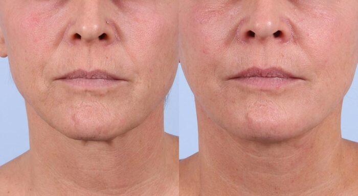 Facelift Patient 12 Photos | Dr. Sudeep Roy, RefinedMD