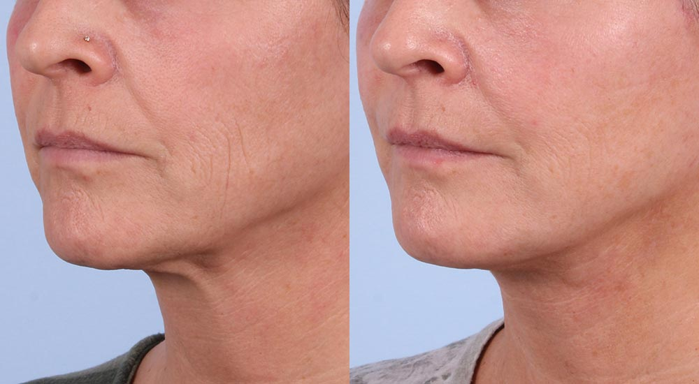 Facelift Patient 12 Photos | Dr. Sudeep Roy, RefinedMD