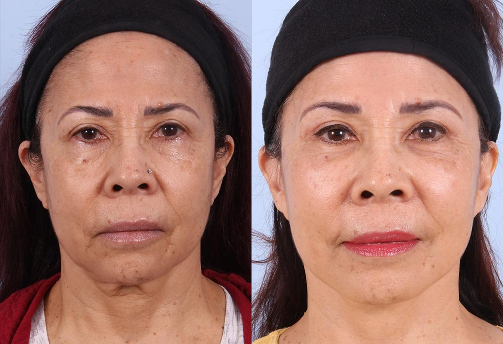 Fat Transfer Patient 1 Photos | Dr. Sudeep Roy, Refined Dermatology