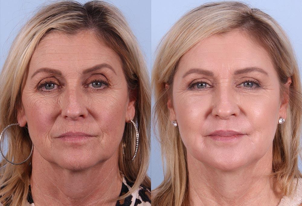 Fat Transfer Patient 3 Photos | Dr. Sudeep Roy, Refined Dermatology