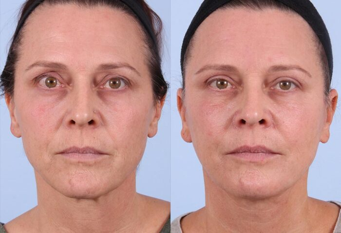 Fat Transfer Patient 4 Photos | Dr. Sudeep Roy, RefinedMD