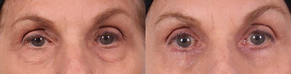 Lower Eyelids Patient 1 Photos | Dr. Sudeep Roy, RefinedMD
