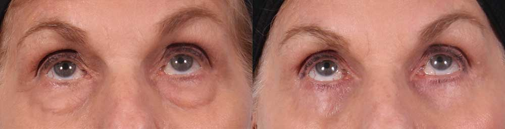Lower Eyelids Patient 1 Photos | Dr. Sudeep Roy, RefinedMD