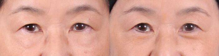 Lower Eyelids Patient 2 Photos   Dr. Sudeep Roy, RefinedMD