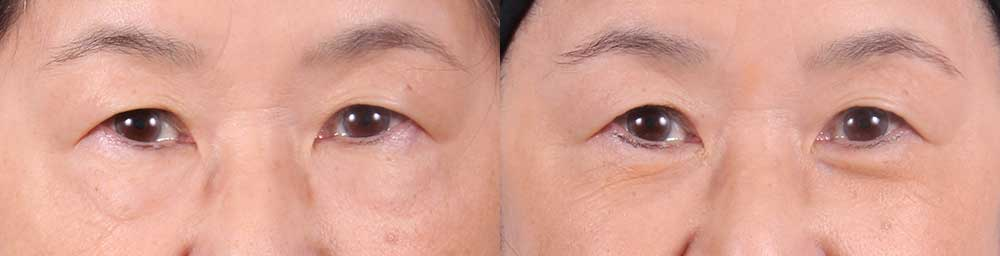 Lower Eyelids Patient 2 Photos | Dr. Sudeep Roy, RefinedMD