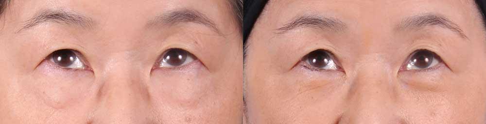 Lower Eyelids Patient 2 Photos | Dr. Sudeep Roy, RefinedMD