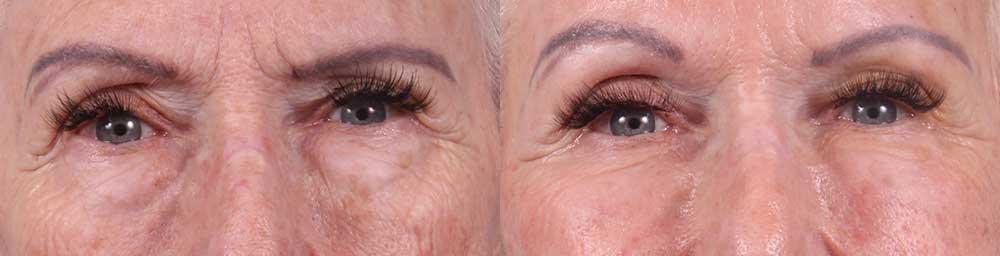 Lower Eyelids Patient 3 Photos   Dr. Sudeep Roy, RefinedMD