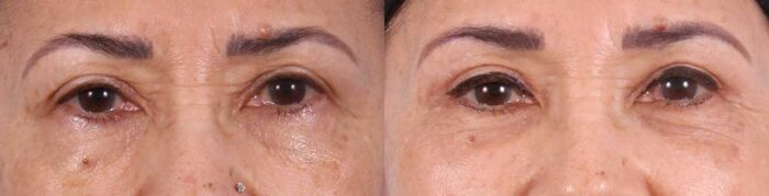 Upper Eyelids Patient 1 Photos | Dr. Sudeep Roy, Refined Dermatology