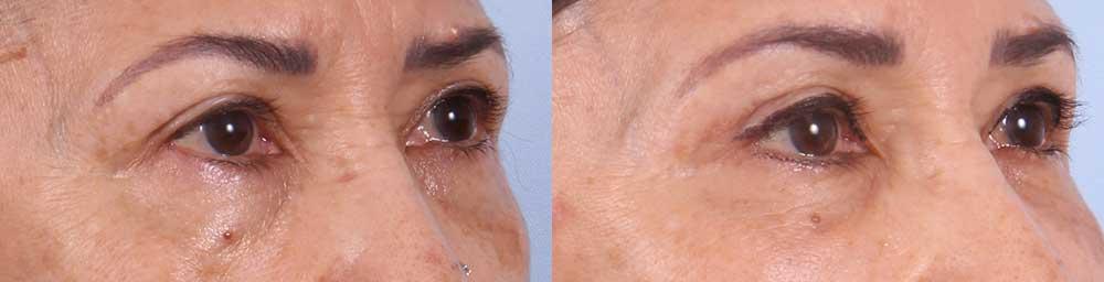 Upper Eyelids Patient 1 Photos | Dr. Sudeep Roy, RefinedMD