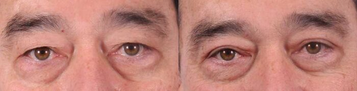 Upper Eyelids Patient 2 Photos | Dr. Sudeep Roy, Refined Dermatology